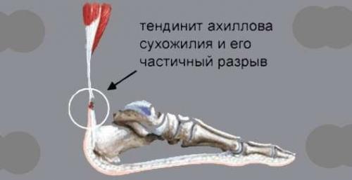 Тендинит (воспаление) ахиллова сухожилия