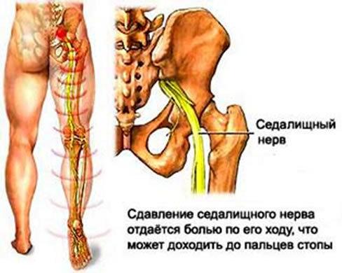 Боли в ноге при поясничном остеохондрозе лечение