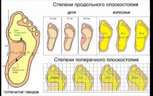 Болит колено при сгибании и разгибании лечение чем мазать и таблетки