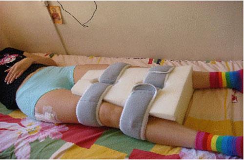 Как жить после замены тазобедренных суставах