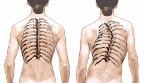 Кифосколиоз грудного отдела позвоночника: виды и лечение