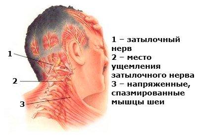 Спина болит отдает в бок