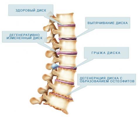 Боль в спине выше поясницы при ранней беременности