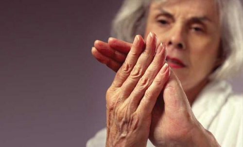 Лечение артрита кистей рук народными средствами