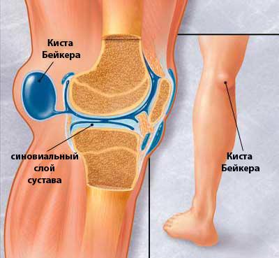 как лечить кисту беккера в коленном суставе