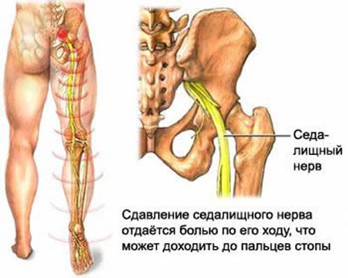 Причины приступа остеохондроза