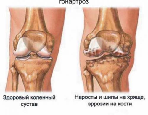 Симптомы при обострении поджелудочной железы и лечение