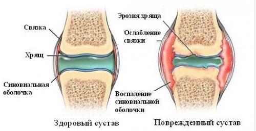 Питание при болят в суставы