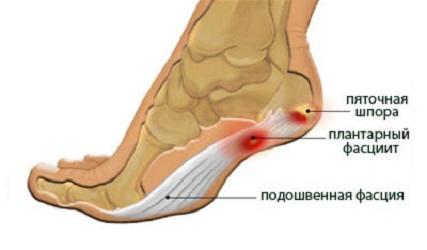 Почему болят ноги и что сделать, чтобы полегчало - Лайфхакер 38