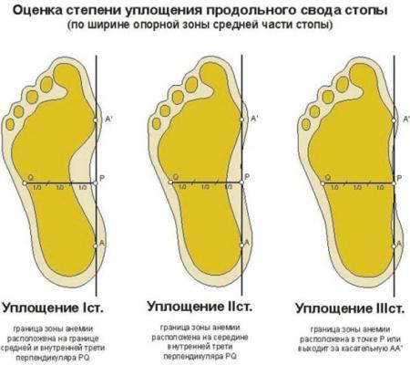 Лечение плоскостопия у взрослых в домашних условиях