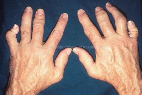 Можно ли мыться при грибке ногтей
