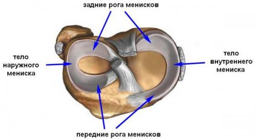 Разрыв мениска коленного сустава операция