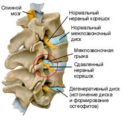 Как лечить грыжу грудного отдела позвоночника