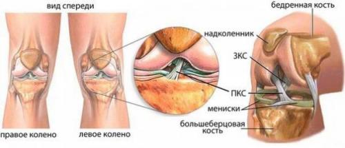 zhidkost-v-kolennom-sustave-lechenie-prichini