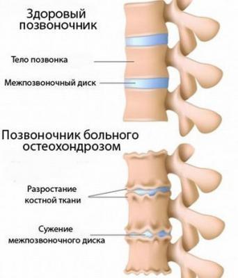 Боль в левом и правом боку внизу спины