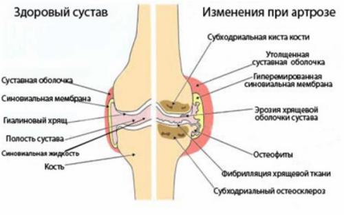 Артроз пальцев рук: симптомы и лечение
