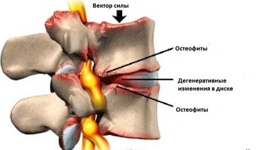 Лечение спины в обнинске