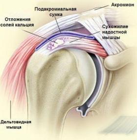 Ноет плечо спина лечение