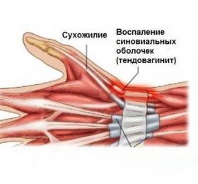 Тендовагинит лучезапястного сустава