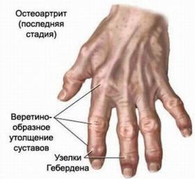 Артроз пальцев рук: как лечить, причины, симптомы