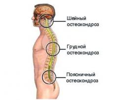 Остеохондроз грудной клетки: симптомы и лечение