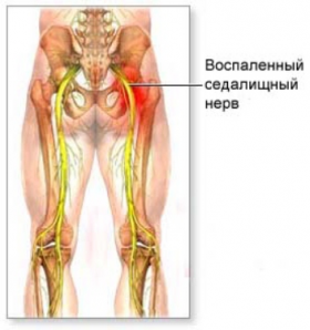 Седалищный нерв анатомия схема