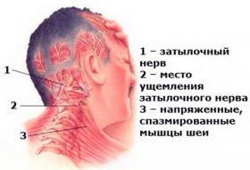 Защемление нерва в шейном отделе: симптомы и лечение