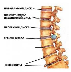Болит низ спины слева что делать