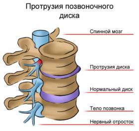 Протрузия дисков шейного отдела