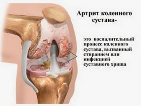 Реактивный артрит коленного сустава: симптомы и лечение