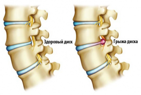 Признаки остеохондроза шейного-грудного отдела