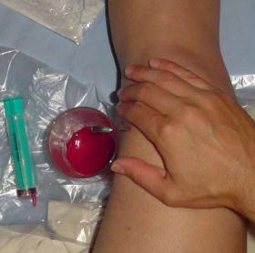 Гемартроз коленного сустава: признаки и лечение