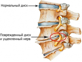 Лечение позвоночника методом увт