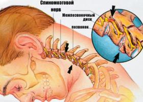 Сильная боль в горле и болит шея