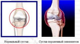 артропатия правого коленного сустава что это