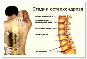Боль в левом боку спины внизу темная моча