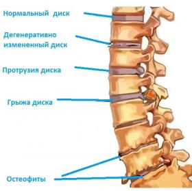 Болит правое крыло спины