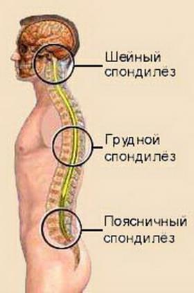 фото соли на спине