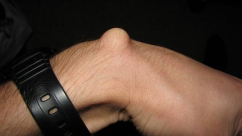 Гигрома лучезапястного сустава