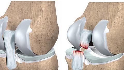 передняя крестообразная связка коленного сустава операция видео
