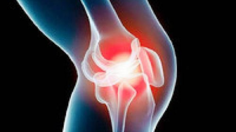 Лікування артрозу колінного суглоба 3 ступеня