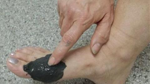 Как избавится от косточки на ноге в домашних условиях форум
