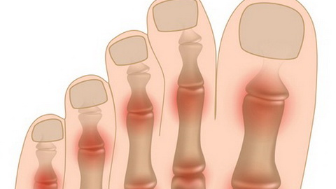 Анатомия суставов пальцев ног