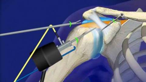 Артроскопия плечевого сустава: что это? Стоимость и методика ...