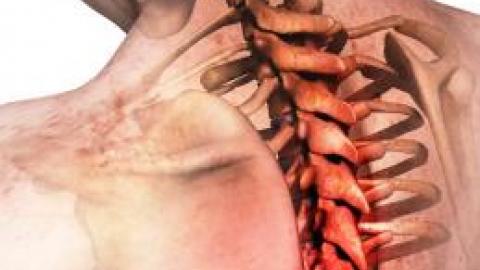 Как лечить остеохондроз пояснично отдела