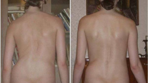 Лечение сколиоза у взрослых