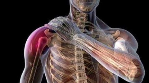 Плексит плечевого сустава и лечение