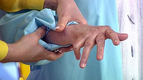 Псориаз артроз лечение - Все про суставы