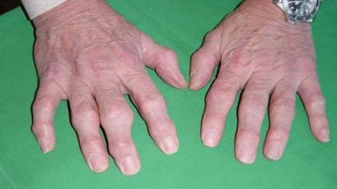 Причины симптомы и возможные последствия артрита