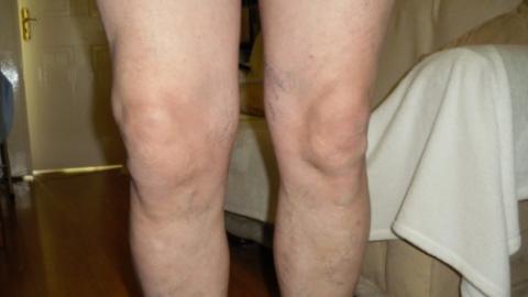 Деформирующий артроз коленного сустава 1, 2, 3 степени: лечение и ...